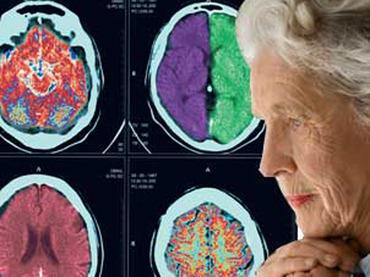 Estudios sobre el Alzheimer